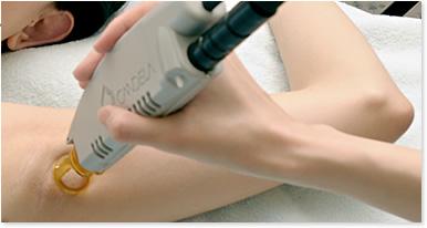 最新の医療レーザー機器「GentleLASE」