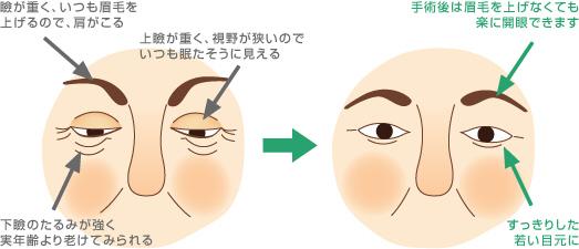 眼瞼下垂手術(眉毛)