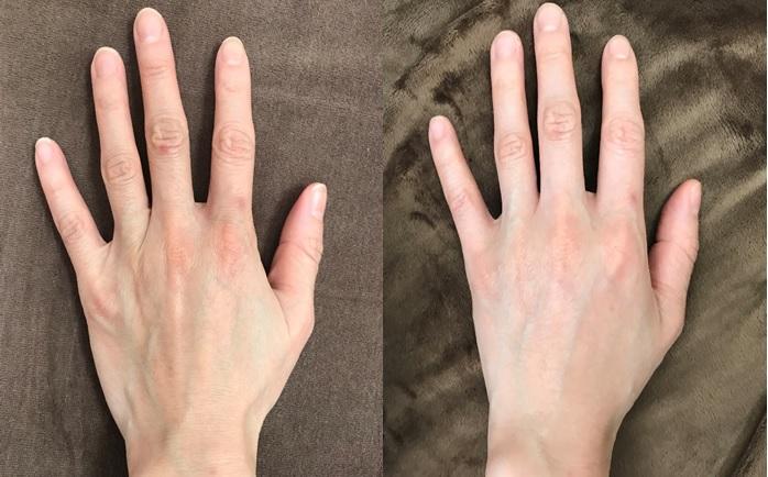 【ヒアルロン酸注射】年齢が出やすく隠しきれない手の甲のシワにヒアルロン酸注射