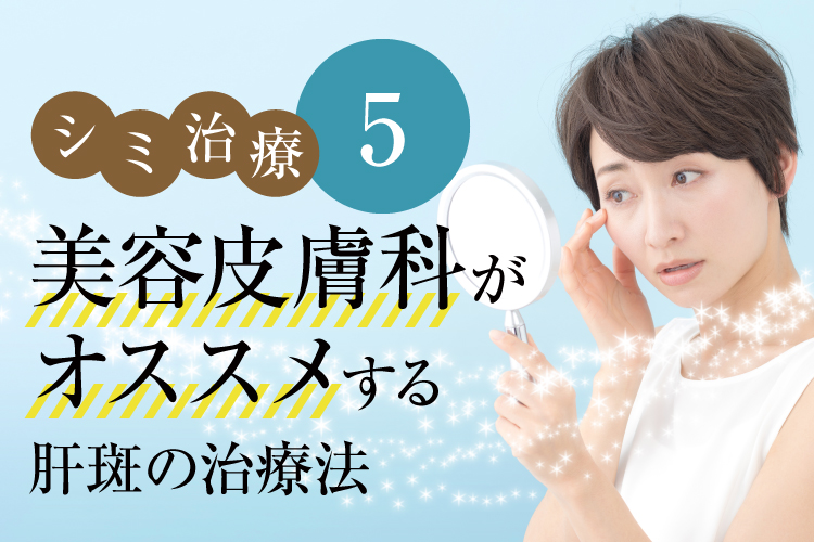 シミ治療5(美容皮膚科がオススメする肝斑の治療法)