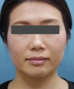 切らずにどこまで小顔になれるのか?切らない小顔治療の特徴とボトックス注射の効果