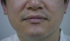 髭脱毛【医療レーザー脱毛】の6年後の効果は??