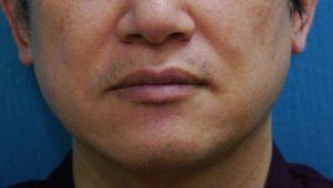 ★髭脱毛13