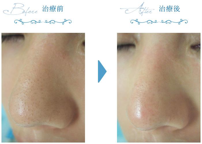 いちご 鼻 治療